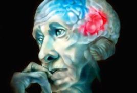 Диагностика синдрома Альцгеймера